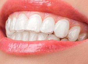 onde comprar moldeira para clareamento dental