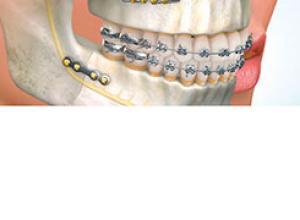 preço cirurgia ortognática