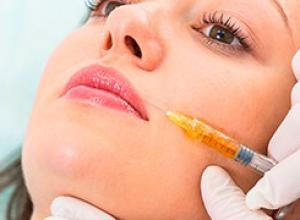 preenchimento ácido hialurônico bigode chinês
