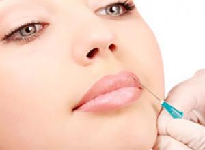 preenchimento labial definitivo