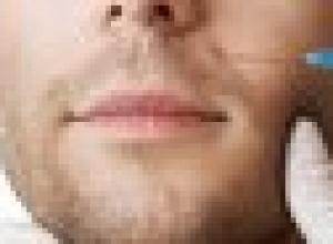 qual o melhor tratamento para bigode chinês