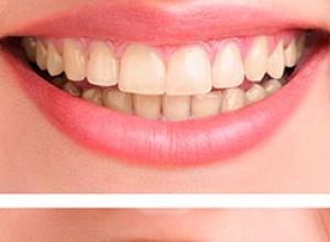 tratamento de clareamento dentário